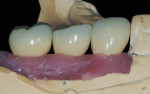 Figure 13 CAD/CAM abutments and PFM crowns seated on the Robocast with soft tissue.