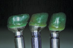 Figure 11 The wax-up for the PFM crowns performed on the CAD/CAM abutments.
