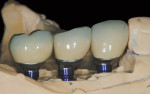 Figure 12 CAD/CAM abutments and PFM crowns seated on the Robocast.