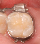 Figure 5 This photograph shows a 6-year recall of a molar sealed with Embrace WetBond pit and fissure sealant, depicting long-lasting benefit to tooth structure. (photo courtesy of Joseph P. O'Donnell, DMD)