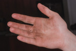 Figure 5 Because alcohol hand rubs do not remove bioburden from contaminated hands, visibly soiled hands must be washed