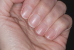 Figure 10 Fingernails should be filed smooth, short, and rounded to allow clinicians to clean thoroughly and prevent glove tears.