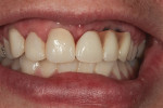 Figure 1 Patient's smile line is assessed for tooth size, shape, and color.