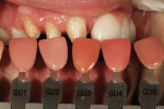 Figure 5 Gum shade is chosen for gingival porcelain additions to implant prosthesis.