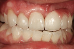 Figure 13 Try-in of restorations without hydration of  teeth.