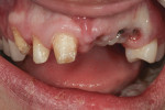 Figure 2 Gingival height and implant placement are compromised due to extent of trauma.