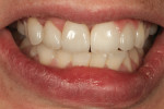 Figure 15 Frontal view with teeth hydrated shows smile line esthetics and harmony.
