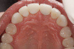 Figure 6 Three-month postoperative occlusal view.