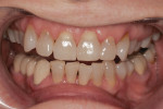 Figure 3 1:2 retracted smile with upper and lower teeth slightly apart. Patient desired a brighter, fuller smile.