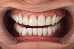 Figure 9 Teeth No, 10, No. 11, No. 12, and No. 13 were lengthened 1 mm with lithium disilicate veneers to make the smile appear more even, to the patient's satisfaction.