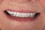 Figure 8 Teeth No, 10, No. 11, No. 12, and No. 13 were lengthened 1 mm with lithium disilicate veneers to make the smile appear more even, to the patient's satisfaction.