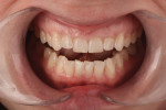 Figure 13 Using smile design techniques, tooth lengthening was proposed that would reduce the central width-to-height ratio to 76%.