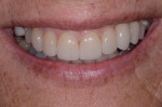 Figure 8 Final smile with completed veneers, crown, and removable partial denture, Note the subtle appearance of the clasps.