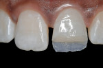 Figure 10  After bevel placement, etching, and bonding, a thin layer of an enamel-shaded composite (Artiste Enamel, Pentron Clinical Technologies) was placed with the aid of a silicon index to reproduce the palatal enamel.
