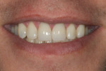 Figure 11 Full smile close-up after treatment; note increased display as patient now smiles unrestricted.