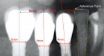 Figure 5 Nearby natural tooth serves as reference point to determine initial mesial-distal position for screw access.