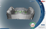 Figure 5 The approved denture wax-up was scanned and superimposed over the bar design to prior for approval prior to bar milling.