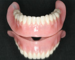 Figure 8 Processed mandibular bar-retained overdenture.
