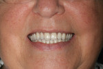 Figure 12 Completed maxillary and mandibular overdentures in occlusion.