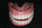 Figure 11 Processed maxillary bar-retained overdenture.
