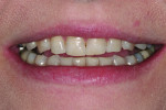 Figure 3 Pre-restorative 1:3 full smile. Note the irregular incisal wear on both the maxillary and mandibular teeth.