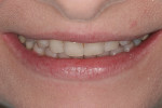 Figure 6 The tip down smile. This photo aids in determining the proper horizontal incisal edge position.
