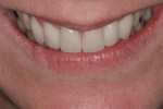 Figure 19 Postoperative tip down smile. Note the incisal edges are now at the vermillion border of the lower lip.
