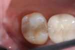 Figure 2 Tooth No. 2 prior to the preparation, with recurrent decay on the distal extending onto the pulpal floor.