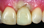 Figure 11 Roughly one month after stage 2 uncovering, a new acrylic provisional crown restoration was made and used to sculpt the soft tissue shape.