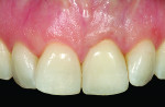Figure 14 The final cement-retained crown restoration on implant tooth No. 9 showing a harmonious blend and balance of periodontal health as well as white and pink color integration.