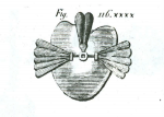 Figure 1 Delabarre's obturator, velum, and uvula restored with elastic gum. (Taken from: Aramany MA. A history of prosthetic management of cleft palate: Pare′ to Suersen. Cleft Palate J. 1971;8:415-430.)