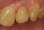 Figure 30 Lustre paste application was reviewed in the patient's mouth for shade selection and placement of additions.