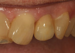 Figure 31 Immediate insertion of restoration with teeth dehydrated reveals the accuracy of the shading.