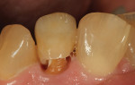 Figure 33 Occlusal photographs show integrity of central appearance and incisal characteriazation.