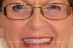 Figure 19 Calibrated facial analysis of anterior tooth position.