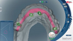 Figure 7 Digital bar design analysis showing occlusal view in relation to tooth arrangement and residual ridge.