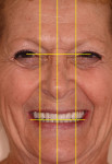 Figure 24 Facial analysis of definitive implant hybrid prosthesis calibrated to interpupillary lines to incisal edge smile line; center of face to midline; ala-to-ala relation to long axis of canines.