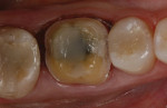 Figure 2 Tooth No. 30 after crown preparation.