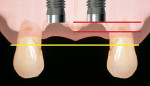 Figure 3  When adjacent implants are placed 3 or more millimeters apart and the interproximal crest of bone is retained (red line), the papilla between the implants may be within 1 to 1.5 mm of the original papilla height (yellow line).