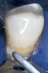 Figure 8  A second opaceous increment was placed in the gingival one half of the preparation, smoothed with a sable brush, and light-cured.