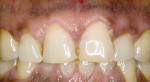 Figure 11 Case 3's 6-month post-treatment view. Patient now desires treatment for other teeth.