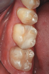 Figure 1 View of the patient's preoperative condition demonstrating the need for updated restorations on the posterior teeth.