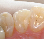Figure 2c  Restorations using a self-etch adhesive with a microfill hybrid composite resin.