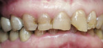 Figure 1  Anterior view demonstrates deep overbite, discolored teeth, and chipped incisal edges.