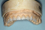 Figure 4  Wax-up of potential restorations demonstrates the possible esthetics that could be achieved.