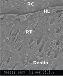 Figure 1 through Figure 3. Cross sections of evaluated restorative materials at the resin/dentin interfaces displaying resin composite (RC), resin tag (RT), hybrid layer (HL), and dentin. Group 1 (DBC-ER) under 2000x magnification (Fig 1); Group 2 (DBC-SE) under 3000x magnification (Fig 2); Group 3 (SBC-SE) under 3000x magnification (Fig 3).