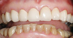 Figure 12  The final esthetic result in the maxillary arch demonstrates incisal translucency but masks the dark teeth underneath.