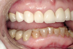 Figure 13  Right lateral view demonstrates excellent gingival adaptation.
