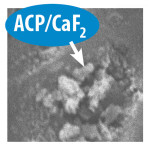 Figure 2. SEM showing amorphous calcium phosphate (ACP) and calcium-fluoride (CaF) deposits occluding tubules.