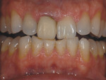 Figure 1 Patient presents with a provisional on tooth No. 8.